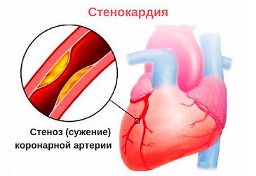 Лечение стенокардии и ИБС