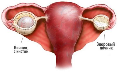 Лечение кисты яичников катушками Мишина
