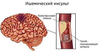 Инсульт мозга фото - лечение