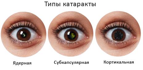 Катаракта, макулодистрофия сетчатки - лечение