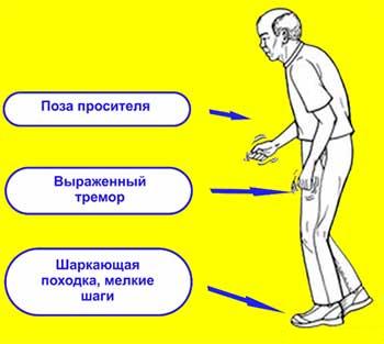 Заболевание Паркинсона - лечение
