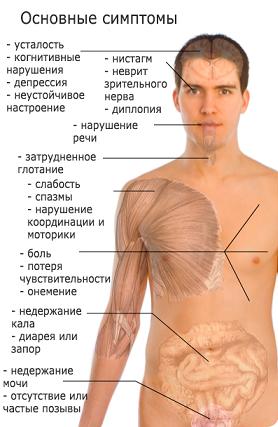 Рассеянный склероз - лечение